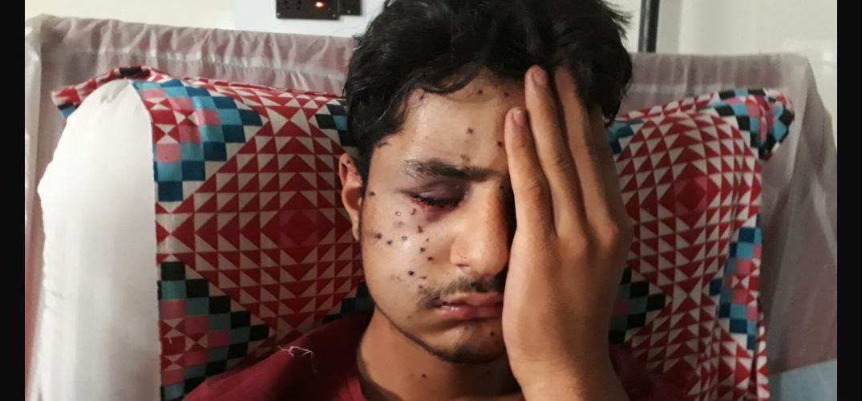 Pellet Guns Fired On Srinagar Muharram Procession, Leading To Blindings